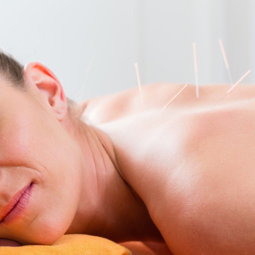 Acupunctuur Groningen bij praktijk an kang